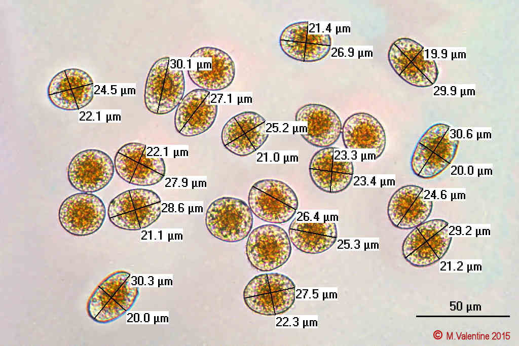 Uredospores from Sori on Grass Leaf.jpg